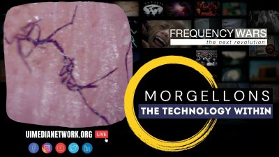 Morgellons: The Technology Within